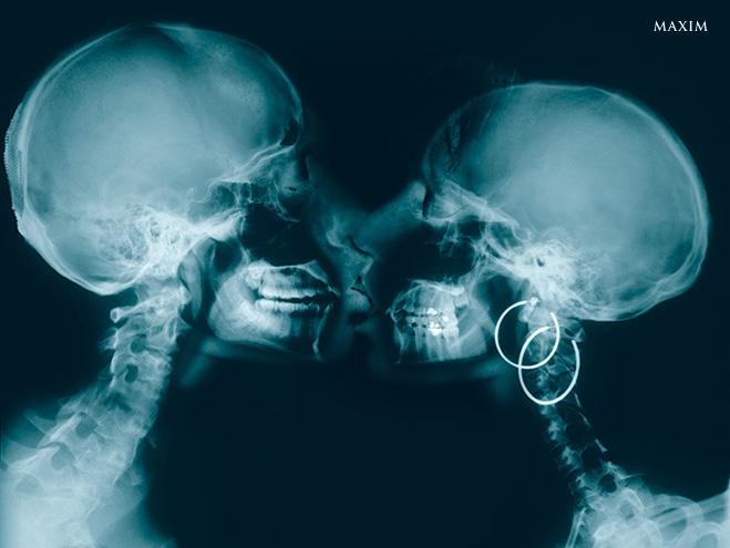 Рентген поцелуя