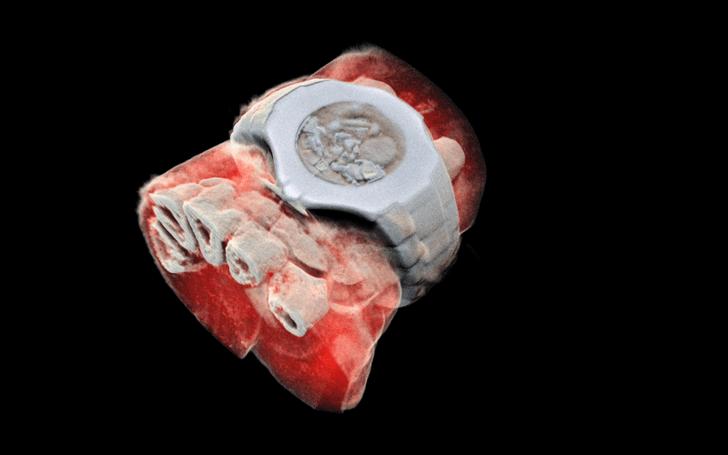 Фото №1 - Посмотри на первый цветной трехмерный рентгеновский снимок