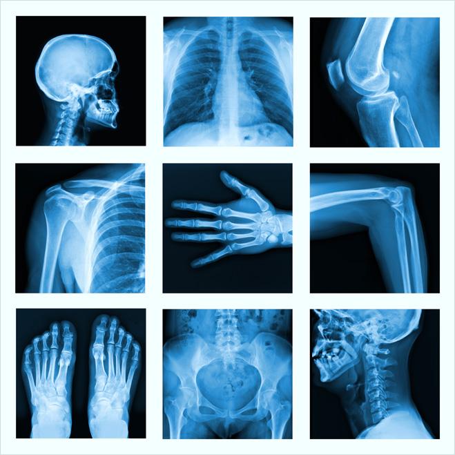 Соблазнить девушку демонстрацией рентгеновских снимков