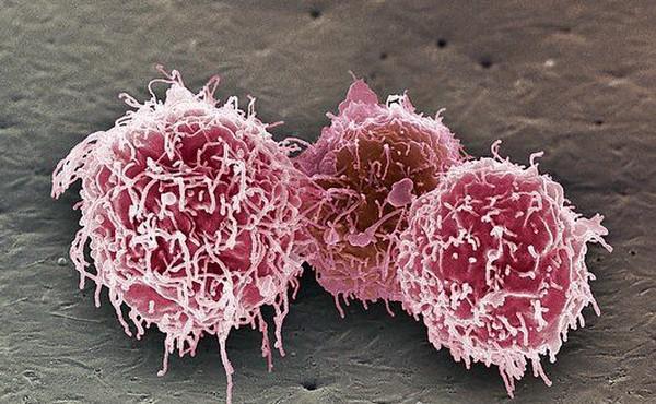 Фото №1 - Американские врачи впервые вылечили рак на последней стадии!