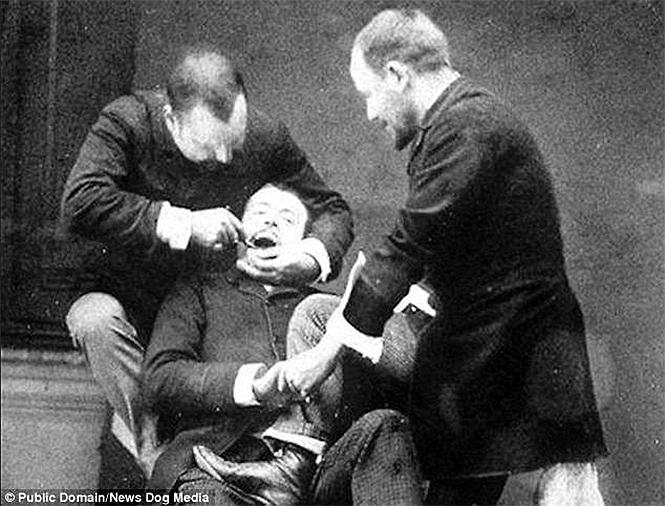 Фото №4 - Ужасы викторианской стоматологии: 13 фотографий без анестезии