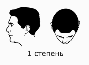 Фото №3 - На волосок от смерти