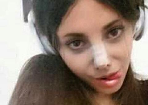 Фото №3 - Женщина из Ирана сделала 50 операций, чтобы стать похожей на Анджелину Джоли