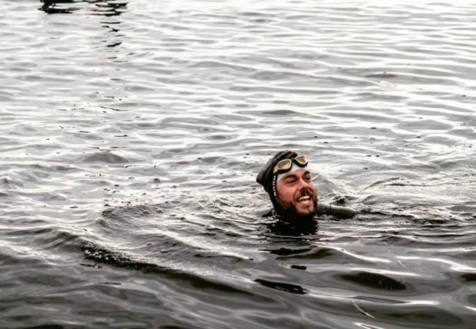 Фото №1 - Вот что бывает с ногами после 157-дневного пребывания в море