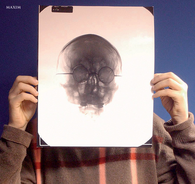 Рентгеновский снимок черепа Джона Леннона