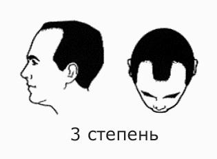 Фото №5 - На волосок от смерти