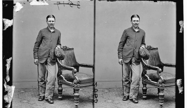 Фото №5 - 5 невероятных историй о людях, которым пришлось делать операцию самим себе