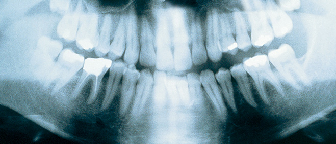 Фото №1 - О чем врут стоматологи из рекламы