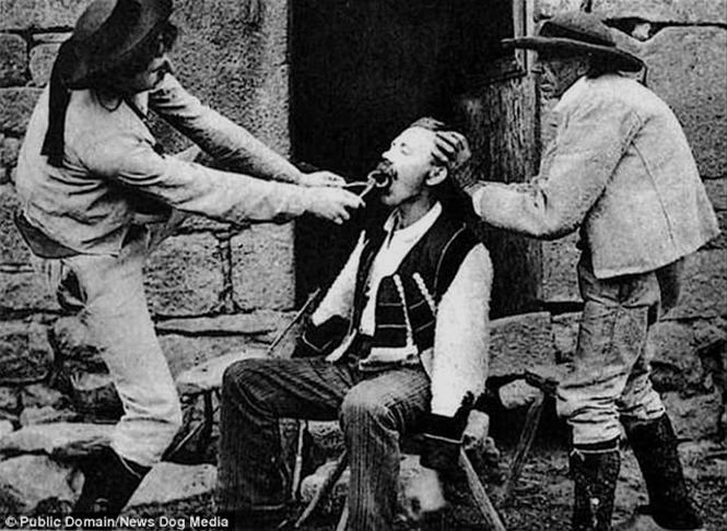 Фото №3 - Ужасы викторианской стоматологии: 13 фотографий без анестезии