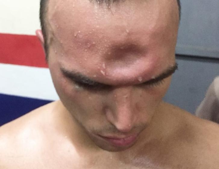 Фото №1 - Боксер во время боя получил в лоб, да так, что осталась вмятина! (ВИДЕО-головоломка)