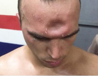 Боксер во время боя получил в лоб, да так, что осталась вмятина! (ВИДЕО-головоломка)