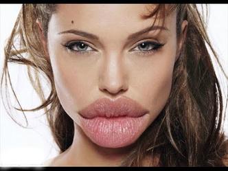 Фото №2 - Девушки, перестаньте накачивать губы!