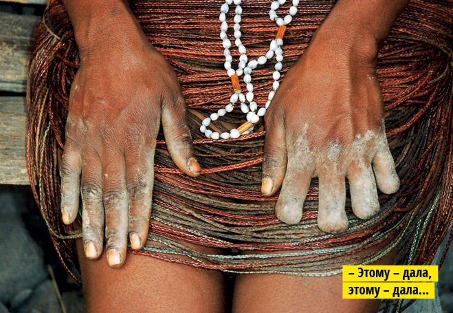 Фото №6 - Стыд и шрам. Особенности национального членовредительства