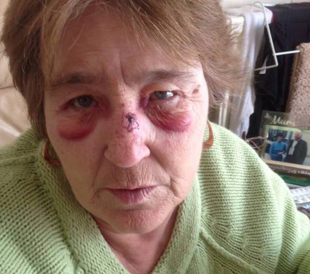 Фото №3 - Женщина с агорафобией вышла из дома и упала в люк. А Бродский ее предупреждал!