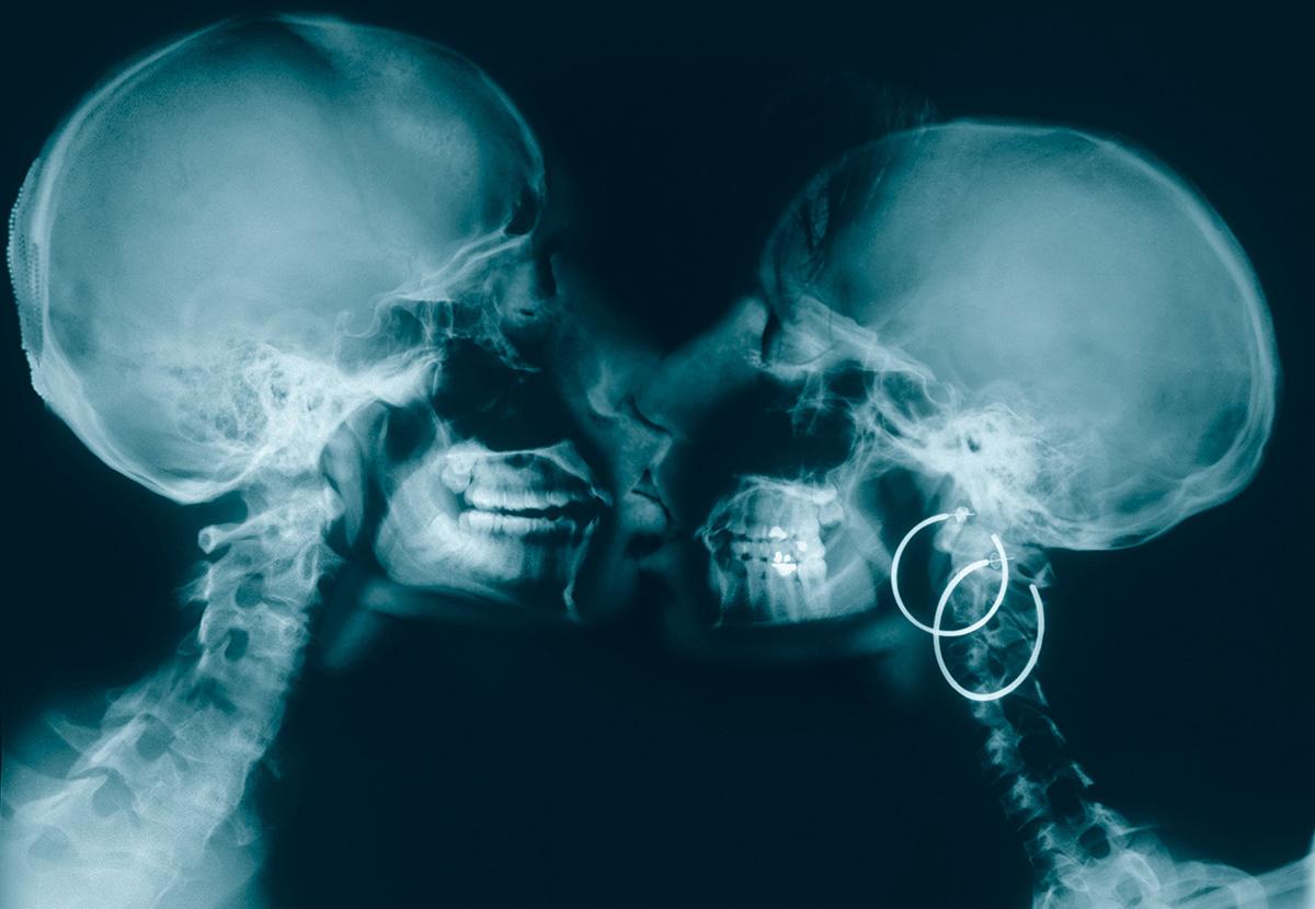 Секс с рентгеном