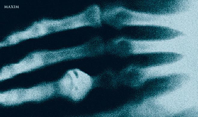Первый рентгеновский снимок