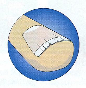 Трещины вдоль ногтей