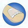 Фото №5 - О чем молчит маникюр: как определить болезнь по ногтям