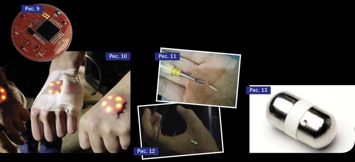 Фото №8 - Испытано на себе! Каково это — жить с электронным чипом в руке? И, главное, зачем?