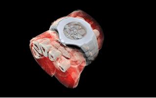 Посмотри на первый цветной трехмерный рентгеновский снимок