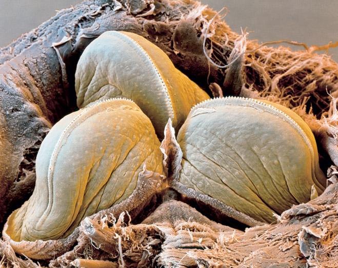 Фото №1 - Микробы среди нас! Эксклюзивные фото голых бактерий, вирусов и прочих возбудителей инфекций