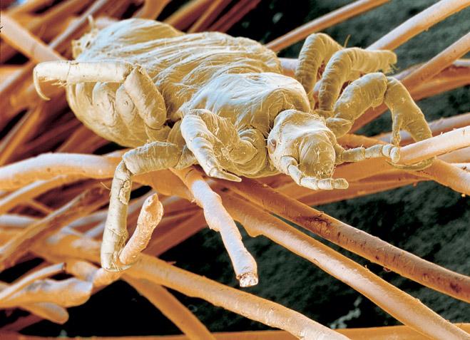 Головная вошь Pediculus humanus capitis